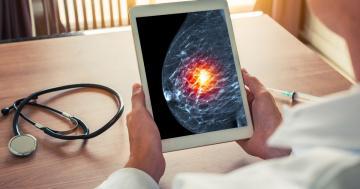 Aplicação dos DRs é aprovada para os exames de Mamografia Digital Direta